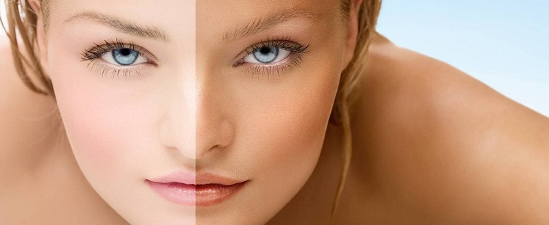 how to remove sun tan quickly with home remedies